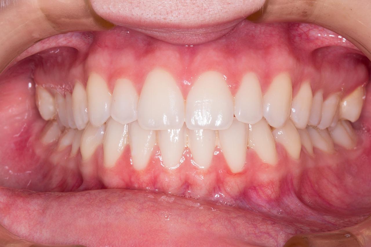 Strach przed wizytą u stomatologa – czy jest uzasadniony?