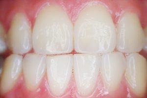 W miejsce po usuniętym zębie warto wstawić implant