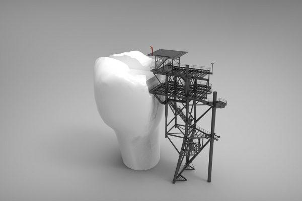 Metody leczenia zębów