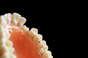 Regularne wizyty u stomatologa gwarancją sukcesu!